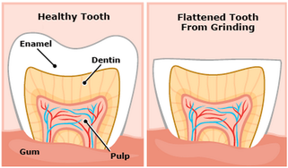 Bruxism (Teeth Grinding/Clenching)