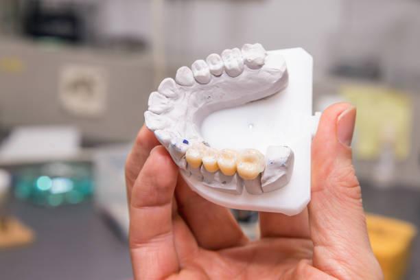 Crown or Dental Bridge